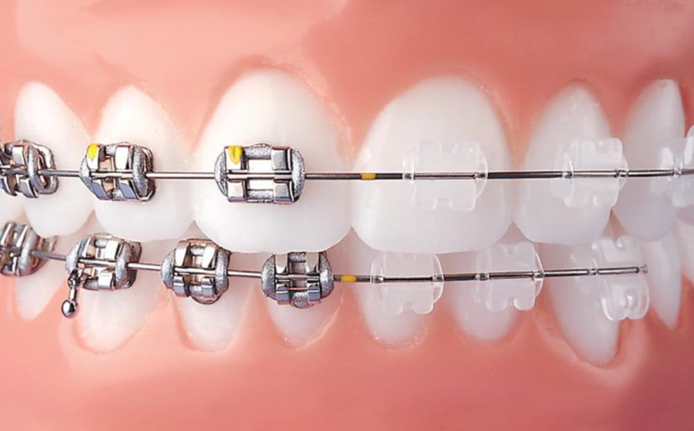 clear.braces.